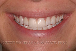 bonded veneers after