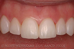 bonded veneers after close up