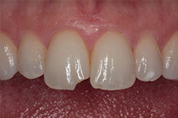 chipped tooth before bonded veneers