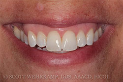 chipped tooth after bonded veneers