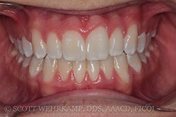 gums and teeth after bonded composites