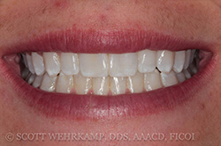 smile after bonded composites