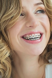 "A young woman with blonde hair smiling and showing off her metal brackets and wires after learning the answer to her question of ""How much are braces?"