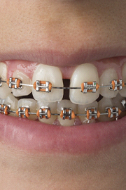 patient with braces