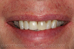Closeup of smile after treatment